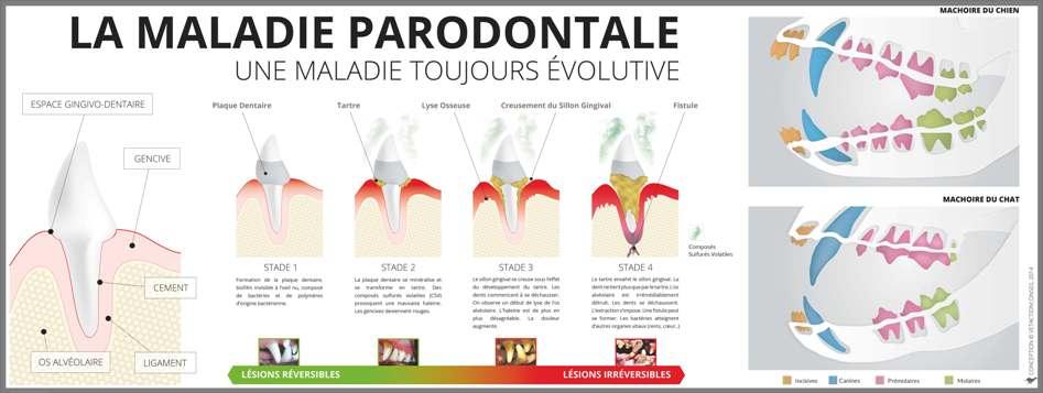 L'évolution de la maladie parodontale